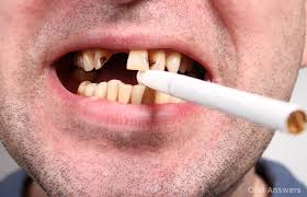 The REAL Reason Smokers Don't Get Dental Treatment